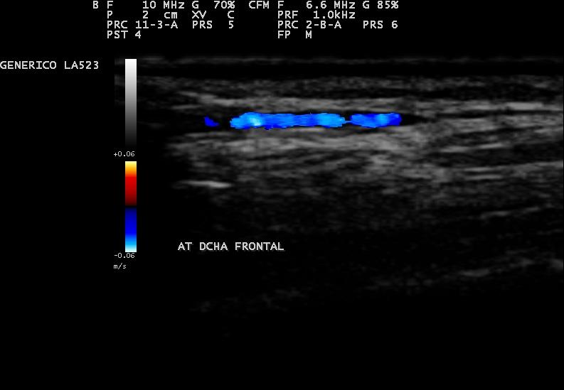 Ecografía arteria temporal derecha, rama frontal (Normal)