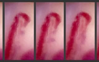 Capilaroscopia secuencia de flujo capilar, dilatación asimétrica, fenómeno de Raynaud, esclerodermia