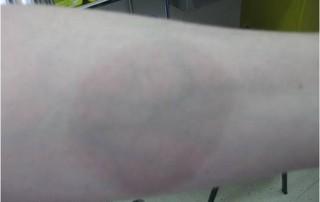 Esclerodermia localizada, placa morfea