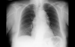 Radiografía espondiloartropatía, artritis psoriásica, aneurisma aorta