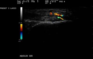 Achilles enthesitis