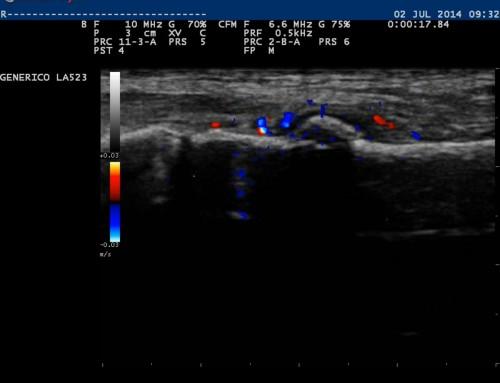 Fractura metatarsiano sin alteraciones en la radiografía