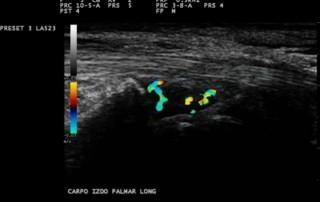 Hand arthritis ultrasound