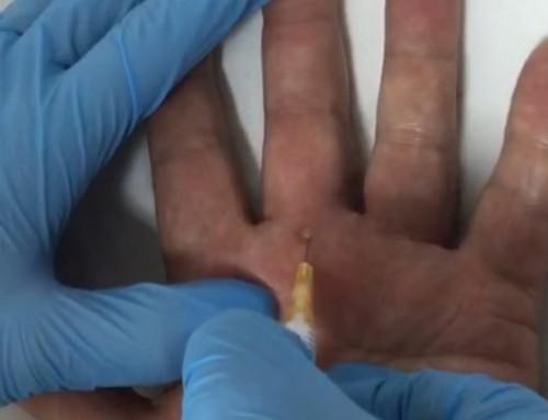 Infiltración tendón flexor tercer dedo