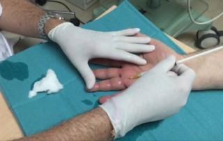 Infiltración tendón flexor cuarto dedo
