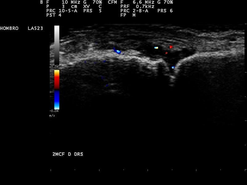 artritis jugada ecografia