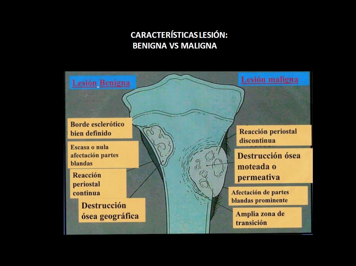 Lectura radiológica de lesiones óseas