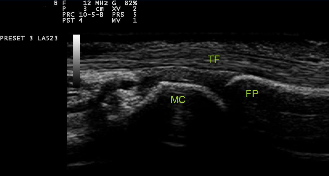 artritis tirada ecografia