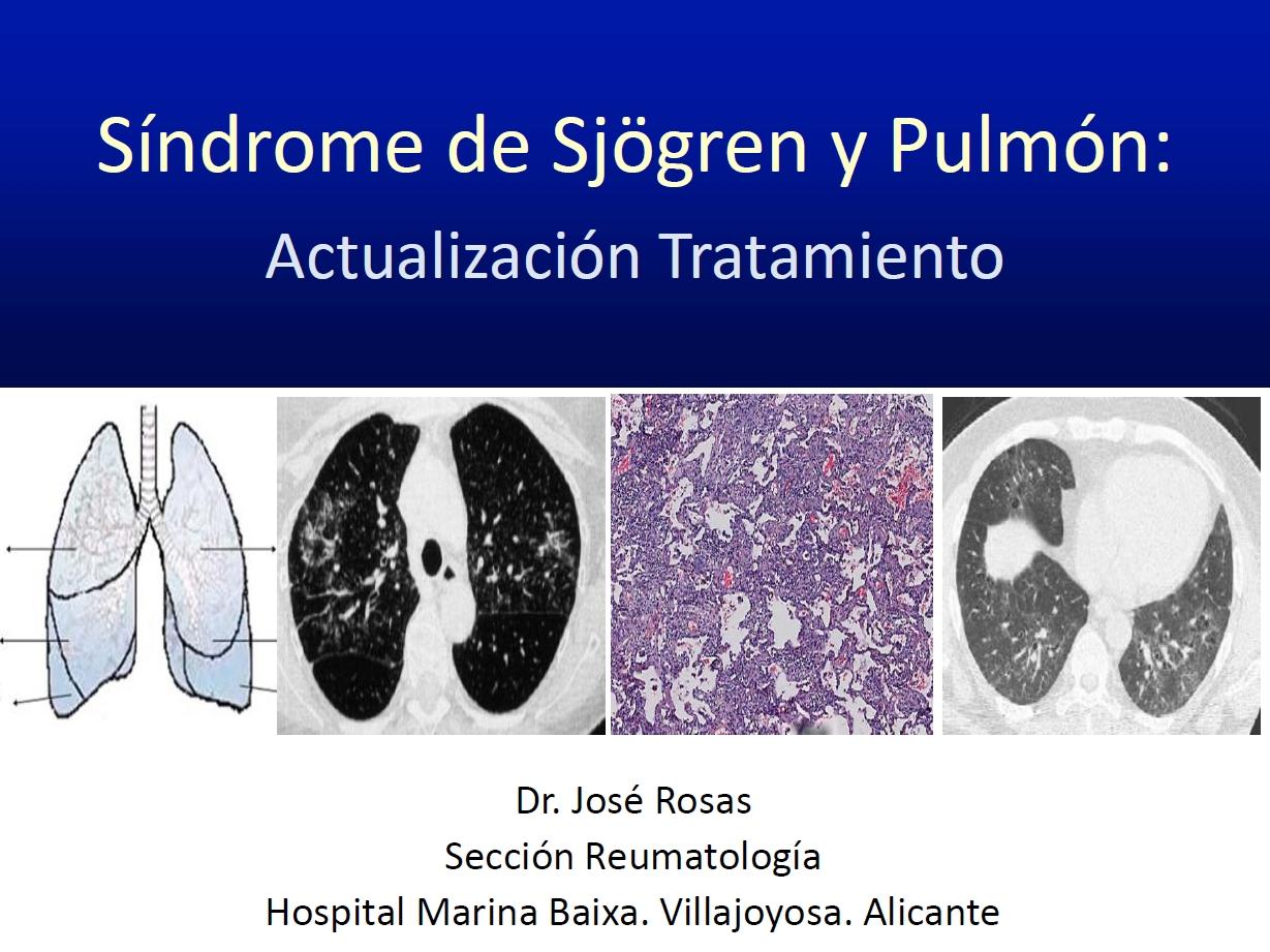 Síndrome de Sjögren y Pulmón: Actualización tratamiento