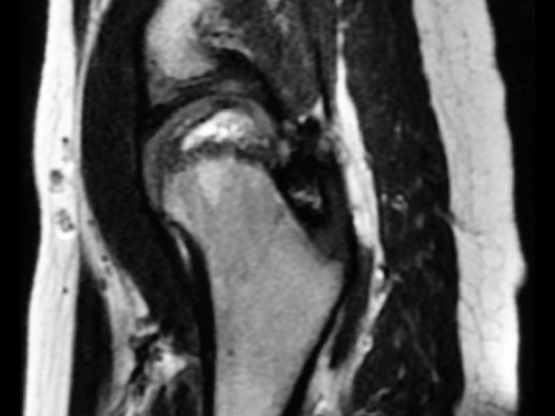 Resonancia magnética cadera, enfermedad Perthes | AIRE-MB